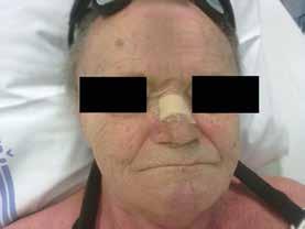 Prevence otlaku na kořeni nosu pomocí antidekubitální náplasti