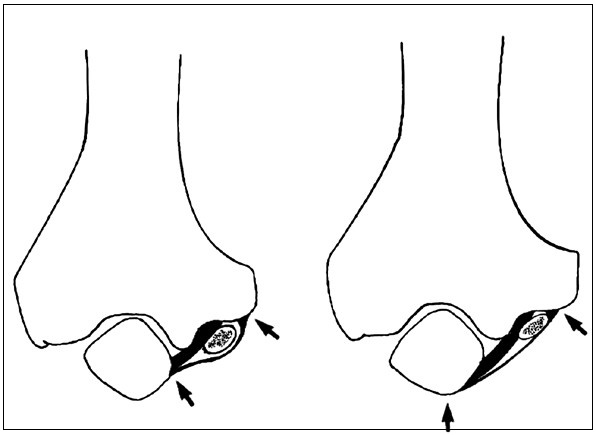 N. ulnaris v lokti při extenzi (A) a jeho komprese při flexi v lokti (B). Fig 3. The ulnar nerve at the elbow during extension (A) and its compression during the flexion in the elbow (B).