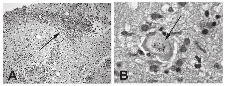 Histologický nález u mozkové toxoplazmózy (biopsie): A – perivaskulární infiltráty (označeno šipkou); B – toxoplazmová pseudocysta s intracelulárními koloniemi trofozoitů (označeno šipkou).