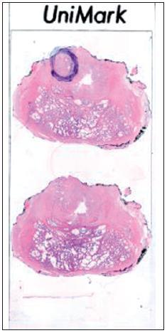 Posouzení okraje preparátu s tkání karcinomu. Na obrázku ukazujeme negativní resekční linii, nádorová tkáň velmi těsně nedosahuje do resekční linie (označeno černě).  Fig. 5. Evaluation of the resection margin within prostate with carcinoma. The negative margin is marked with black line.