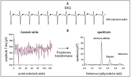 Hodnocení alternace T-vlny (T-wave alternans – TWA) při zátěžové bicyklové ergometrii metodou spektrální analýzy. Přístroje, které se používají pro vyšetření TWA, využívají nejčastěji znázorněný algoritmus. V 1. kroku provedou zesílení vektorového záznamu 128 komplexů v řadě, kde k vektorovému zobrazení využívají 3 Frankových ortogonálních svodů. Každá vlna T je měřena ve stejném čase vztaženém ke komplexu QRS (A). Spektrum je počítačově zpracováno za použití metody Fourierovy transformace. Protože takto vytvořené spektrum je tvořeno hodnotami získanými amplitudou vlny T za každým komplexem QRS, výsledek je udáván v jednotkách cykly/srdeční stah (B). Hodnoty spektra v časovém období 0,5 cykly/srdeční stah ukazují hladinu TWA, zatímco hodnoty spektra v časovém období 0,22 cykly/srdeční stah odrážejí vrchol frekvence dechové aktivity a v časovém období 0,32 cykly/srdeční stah se odráží vrchol frekvence šlapání; upraveno dle [111].