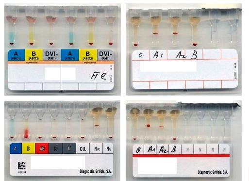Typování AB0 systému v gelových kartách