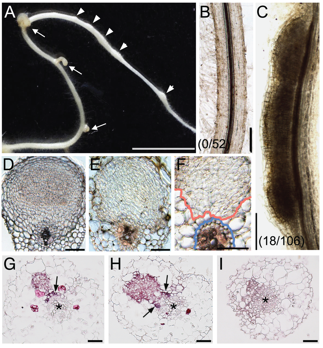 <i>NIN</i> overexpression induces cortical cell division.