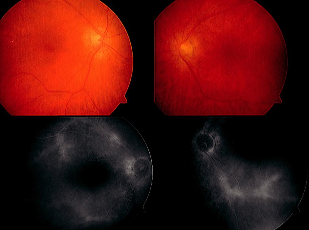 Paraneoplazie u 65leté pacientky s karcinomem prsu. Výrazný pokles CZO nekoreloval s minimálním nálezem na fundu a s projevy vaskulopatie, které dokumentuje pozdní fáze fluorescenční angiografie
