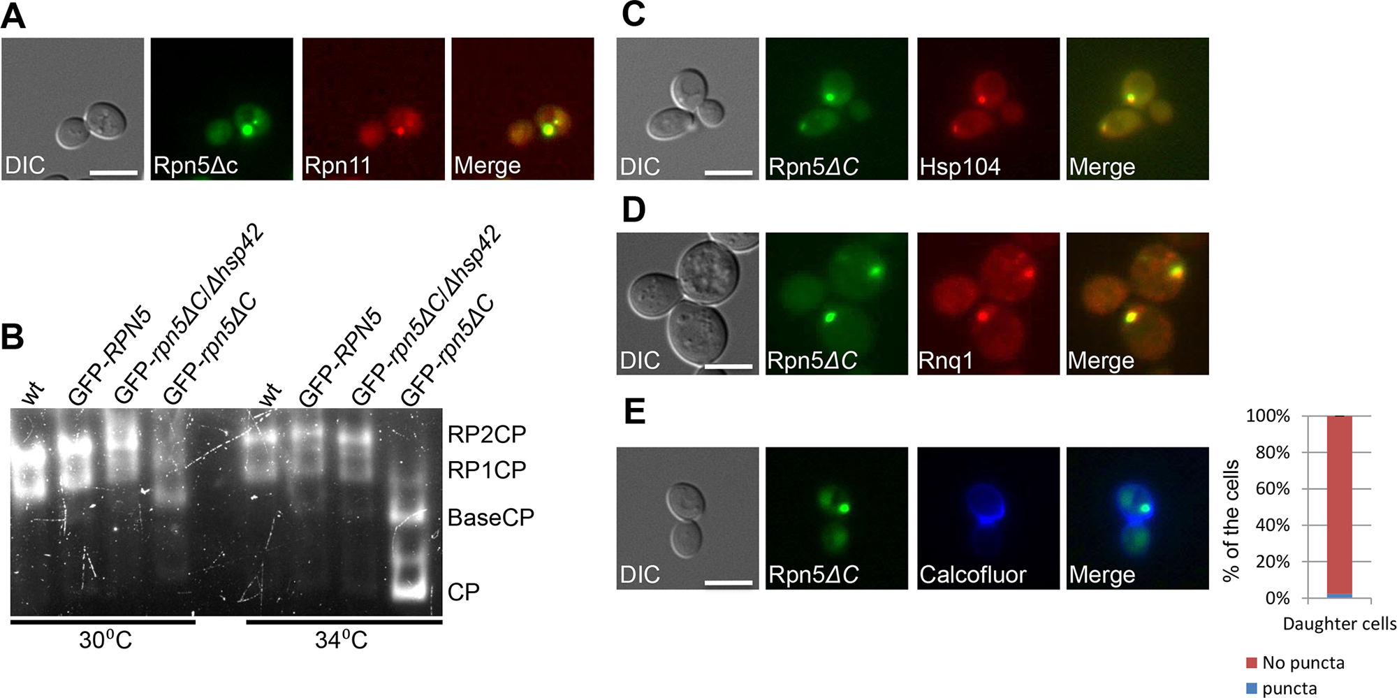 (A) The RP subunit Rpn11-RFP co-localizes with GFP-Rpn5ΔC. Logarithmically growing cells containing Rpn11 fused to RFP (Rpn11-RFP) and GFP-Rpn5ΔC (YSB1090) where grown in galactose containing medium at 30°C and shifted to 34°C for 3 hrs.