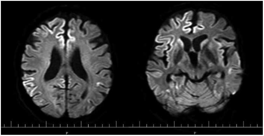 MR mozgu. Obr. 4a) Reštrikcia difúzie pozdĺž kôry frontoparietálne. Obr. 4b) Reštrikcia difúzie pozdĺž kôry frontotemporálne a v oblasti bazálnych ganglií s akcentáciou vpravo (DWI-TRA). Pacient s genetickou formou CJch s mutáciou prionového génu E200K v kodóne 200, polymorfizmus prionoveho génu v kodóne 129 je Met/Val. Publikované so súhlasom Kliniky radiológie a zobrazovacích metód UN LP Košice.
