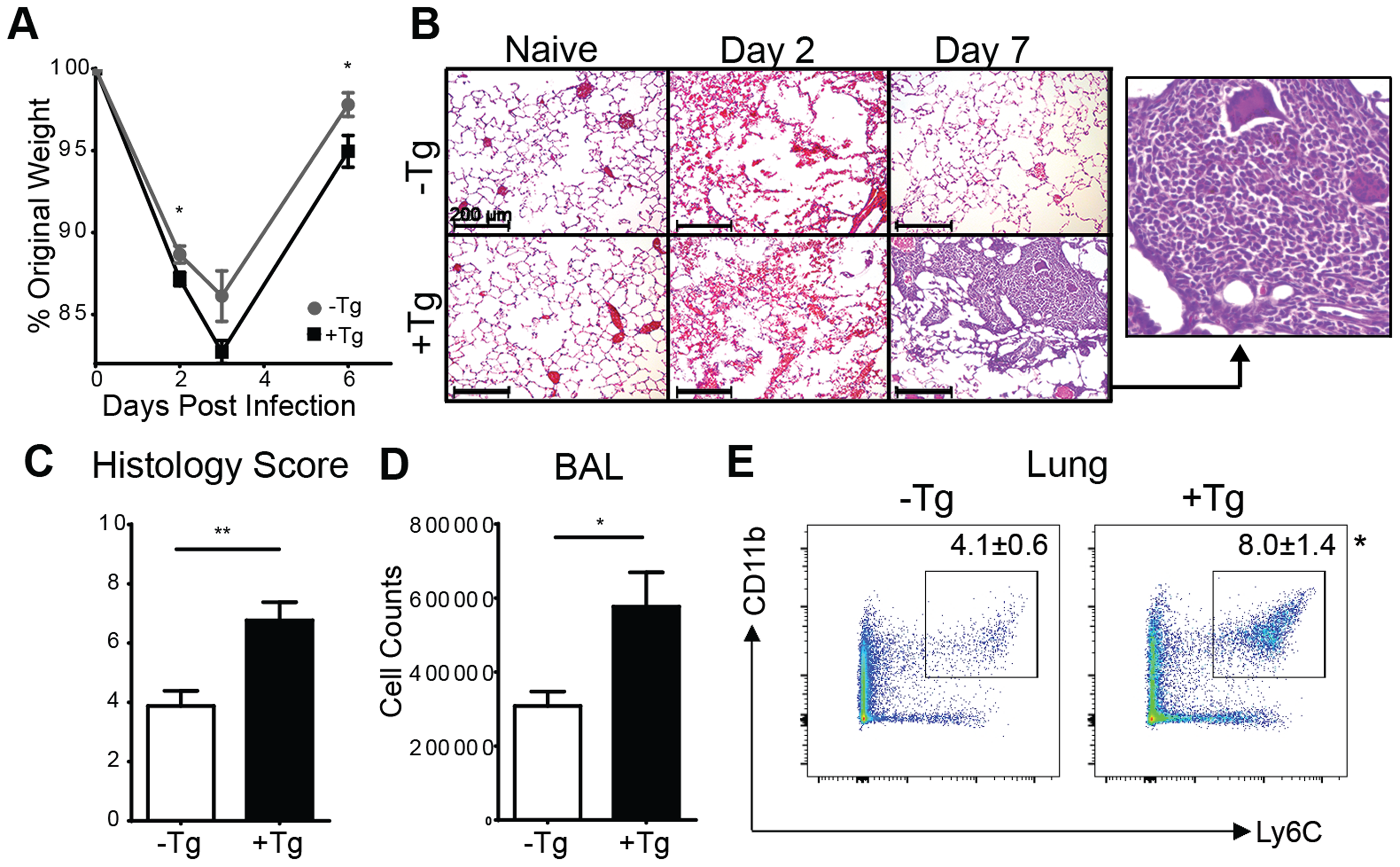 Expression of hResistin exacerbates lung inflammation.