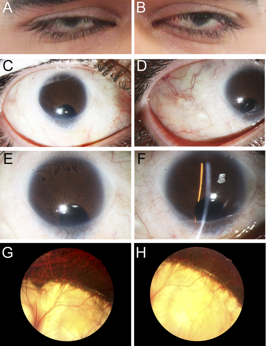 Ocular Images of Patient 1.