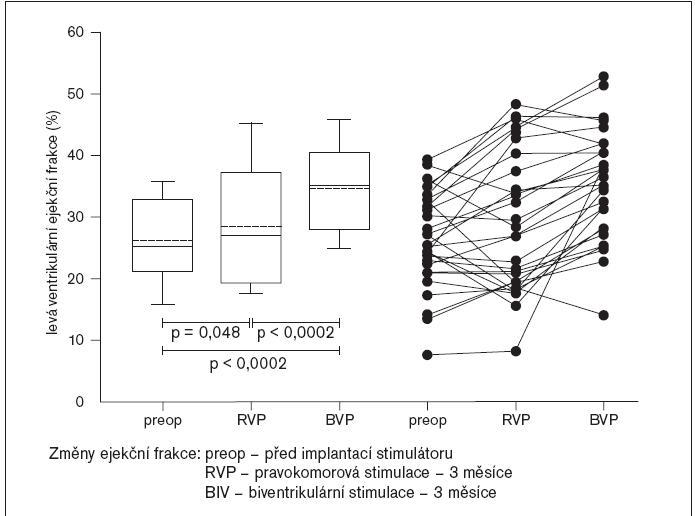 HOBIPACE: změny ejekční frakce při jednotlivých stimulačních režimech.