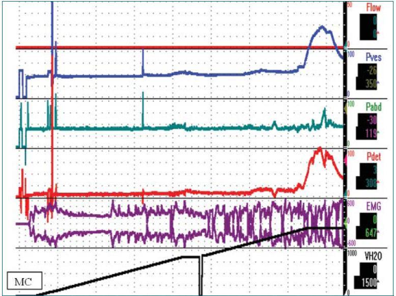 """Schéma 2. LCB a primární obstrukce hrdla močového měchýře. Jedná se o 31letého muže, který je 2 roky na intermitentní katetrizaci po renálním selhání (kreatinin = 7 mg/dl). Pacientovi byl nejprve zaveden katétr, následně byl léčen pomocí intermitentní katetrizace (4–5 denně). PVR se pohyboval okolo několika litrů. Pacient podstoupil urodynamické vyšetření a cystoskopii a lékař mu sdělil, že u něj není přítomna """"žádná překážka"""". Během těchto vyšetření však byl měchýř naplněn pouze do objemu 600–1 000 ml.  Urodynamické vyšetření prokázalo obstrukci podle Schafera VI. stupně. Mikční cystouretrografie a cystoskopie prokázaly obstrukci hrdla močového měchýře a pacient podstoupil TURP. Po dobu 5 let pacient močil 4–5 denně a neuváděl žádné symptomy. Q<sub>max</sub> = 34 ml/S, vymočený objem = 436 ml, PVR = 24 ml. Hladina kreatininu byla stabilní 2,4 mg/dl a clearance kreatininu 54 ml/min."""