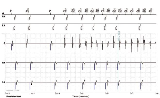 Intrakardiální elektrogram s nástupem supraventrikulární arytmie u pacienta s biventrikulárním ICD sledovaného systémem Biotronik Home Monitoring.  Nahoře: markerový kanál (Ap = stimulace síní, As = síňové vnímání, Ars = síňové vnímání v refrakterní periodě, Vp = pravokomorová stimulace, LVp = levokomorová stimulace), dole IEGM, A = síňový kanál, RV = pravokomorový kanál, LV levokomorový kanál. Po třetím stahu se rozbíhá rychlá síňová aktivita, která je nepravidelně převáděna na komory (síňové vnímání v době refrakterity se uplatňuje v hodnocení síňové frekvence, ale nespouští komorovou stimulaci). Po ověření běžící supraventrikulární arytmie dojde k přepnutí do režimu DDI (MSw DDI), tzv. mode switch, přepnutí do režimu bez možnosti spouštění komorové stimulace síňovým vnímáním.