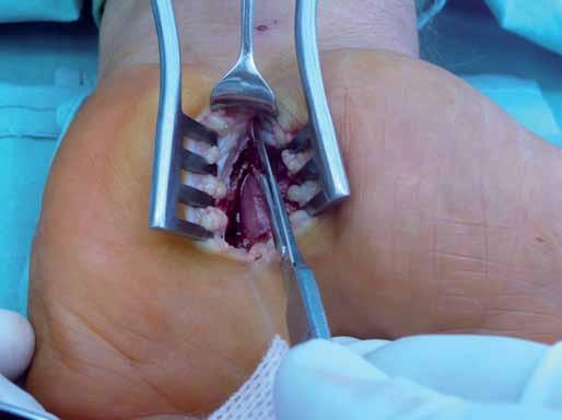 Otevřený operační přístup při dekompresi n. medianus v karpálním tunelu.