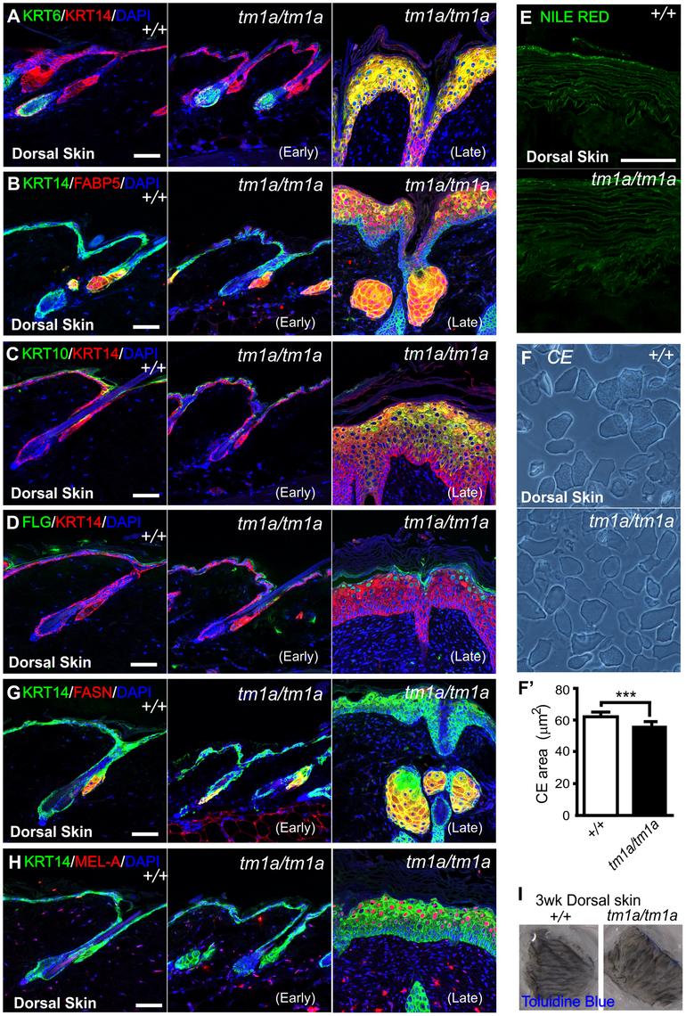 Biochemical analysis of <i>Krt76</i> disrupted skin.