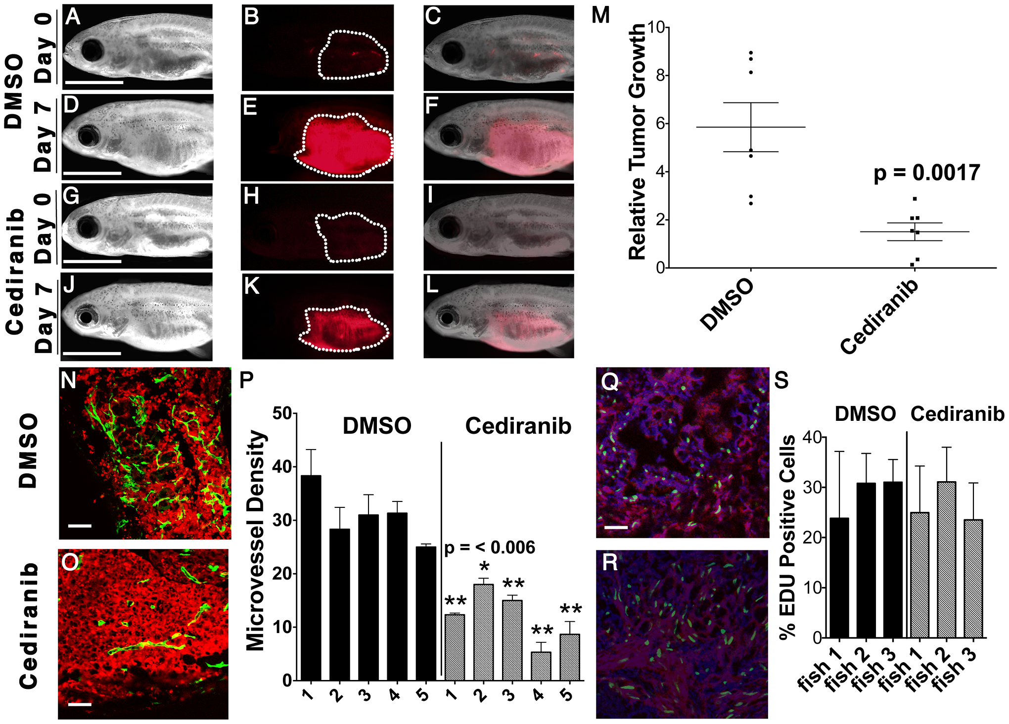 Chemical inhibition of VEGF signaling by cediranib reduces ERMS growth <i>in vivo</i>.