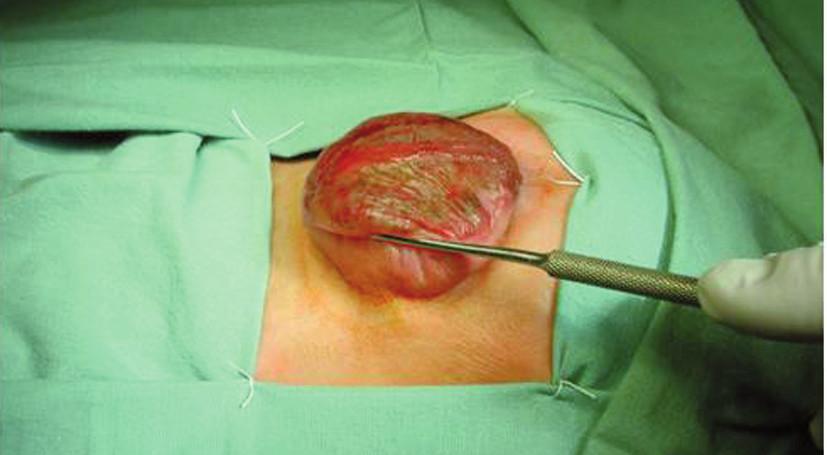Meningomyelokéla před operací. Fig. 2. Meningomyelocele before surgery.
