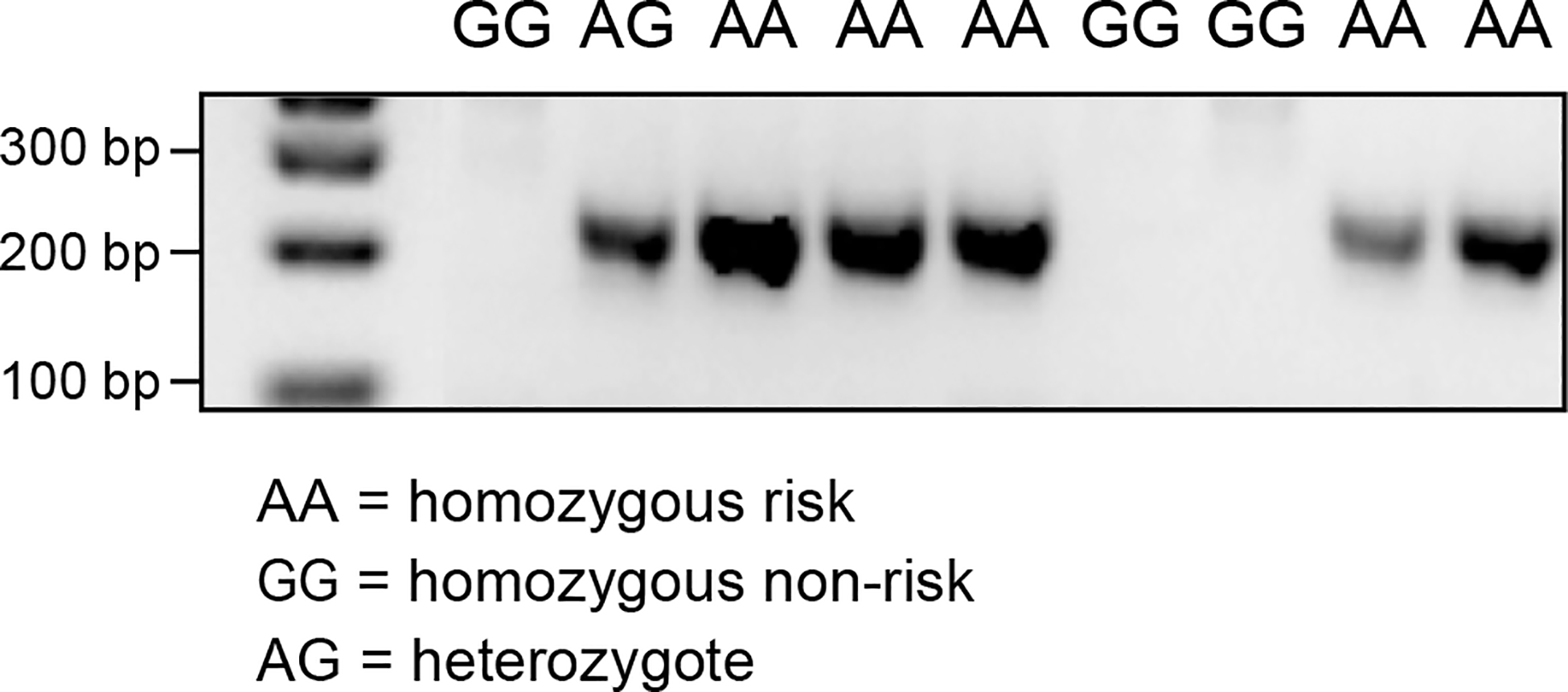 PCR products confirming the alternative splice site in the individuals carrying the A allele on CFA20: 42080147.