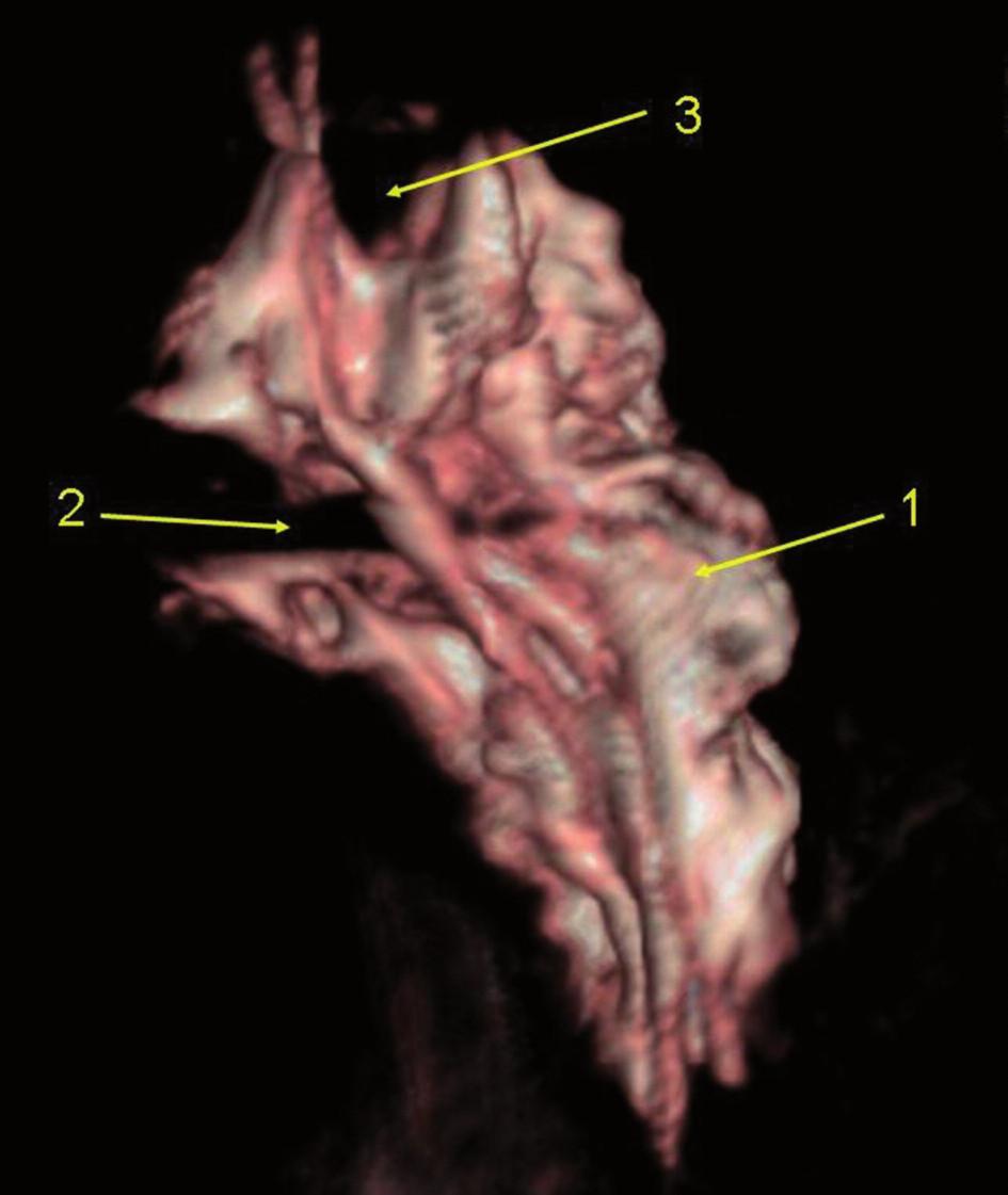 Infraklavikulární blok, 35 ml kontrastní látky 3D rekonstrukce CT vyšetření, laterální pohled na fascii brachiálního plexu, zářez zleva je způsoben existencí m. infraclavicularis, v horní části otisk arteria subclavia. 1 – 3D náplň infraklavikulárního prostoru (pohled z mediální strany) 2 – otisk m. infraclaviscularis 3 – otisk a. subclative
