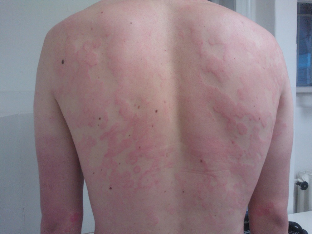 Chronická spontánní urtikarie bez angioedému