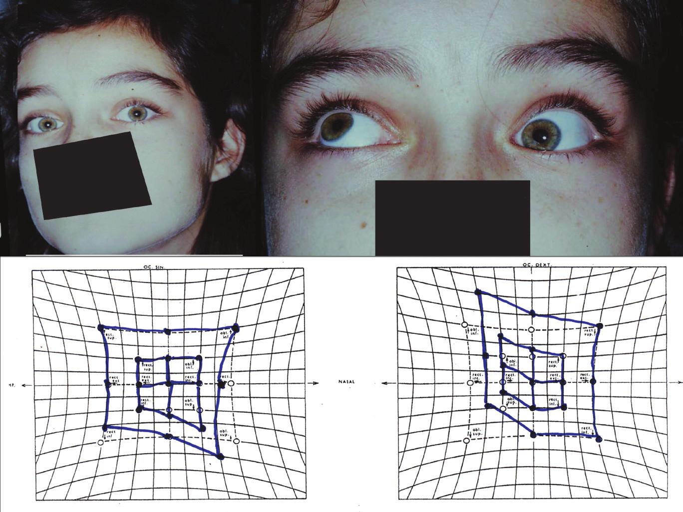 <b>Akutní Brownův syndrom vlevo</b>: Tortikolis doprava se zvednutím brady, porucha elevace s výraznou depresí při addukci vlevo a klasický obraz na Hessově plátně