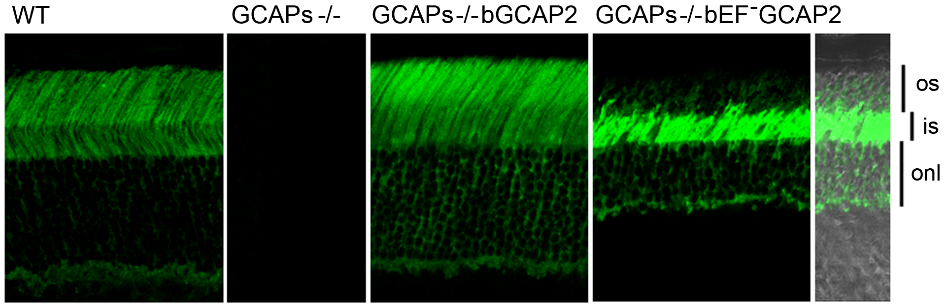 bEF<sup>−</sup>GCAP2 mislocalizes in transgenic retinas, accumulating at the inner segment compartment of the cell.