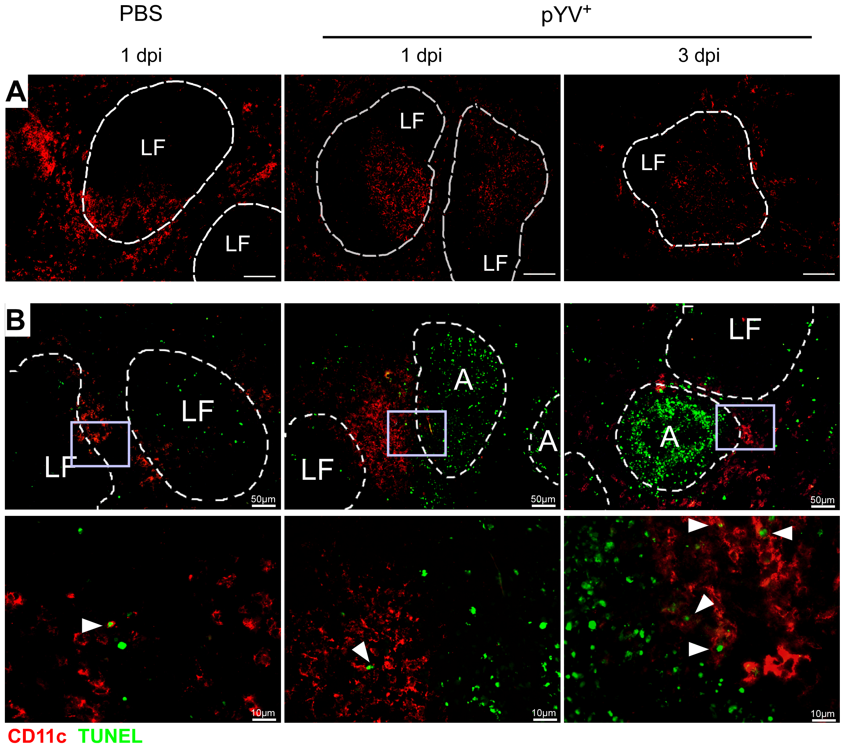 Immunofluorescence analysis of DCs from mice infected with Ye.