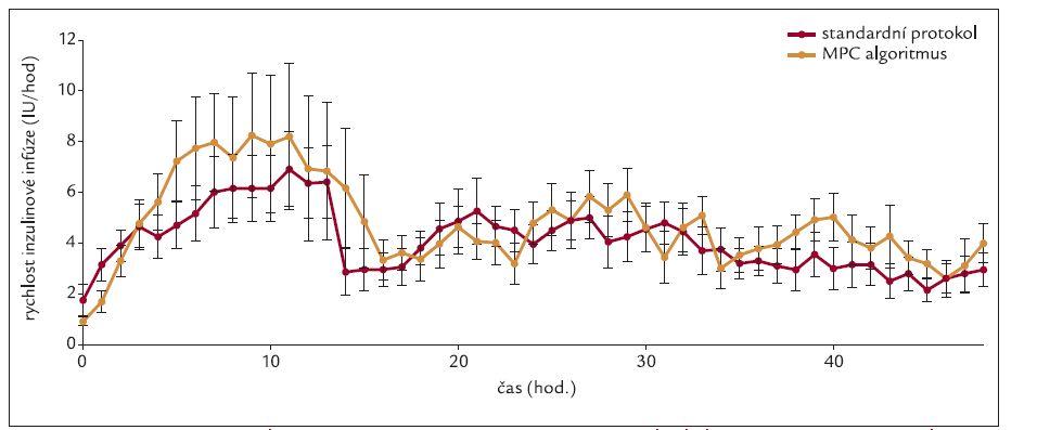 Srovnání průměrné rychlosti inzulinové infuze v čase při použití standardního protokolu a počítačového algoritmu. Vyjádřeno jako průměry ± směrodatná odchylka (SD).
