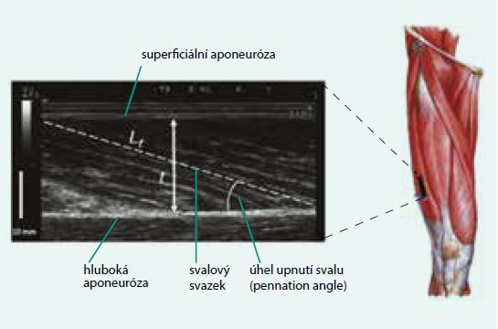 Obr. Ultrasonografické vyšetření architektury m. gastrocnemius