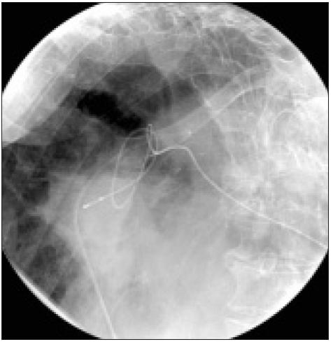 Skiagrafický snímek hrudníku s patrnou malpozicí a dvojitým zauzlením elektrody promítajícím se do oblasti sternoklavikulárního skloubení vlevo.
