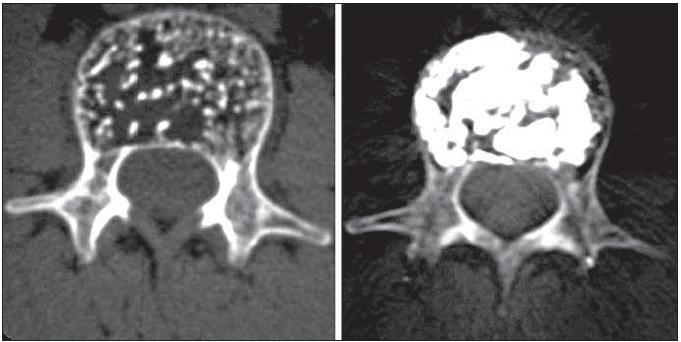 Příklad symptomatického vertebrálního hemangiomu, který invadoval celé obratlové tělo L1. Radikální výplň přinesla kompletní odeznění bolestí.