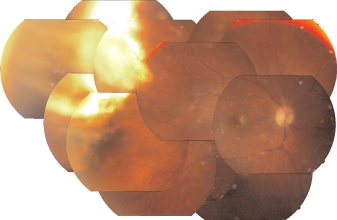 Pacientka č. 1 - Složený snímek očního pozadí za 3 roky po ARN (listopad 2011)