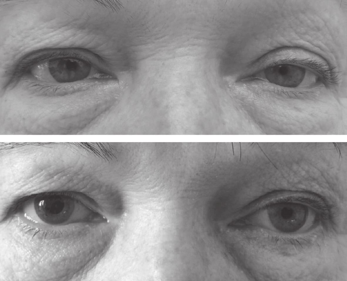 Před aplikací kokainu měla zornice na pravém oku šířku 3 mm, na levém oku 2 mm (nahoře). Hodinu po nakapání kokainu se pravá zornice rozšířila na 5 mm, průměr levé zornice se nezměnil (dole). Kokainový test potvrdil, že se jedná o Hornerův syndrom