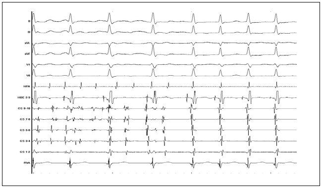 Záznam přechodu fibrilace síní do AVNRT (popis záznamu jako na obr. 3).