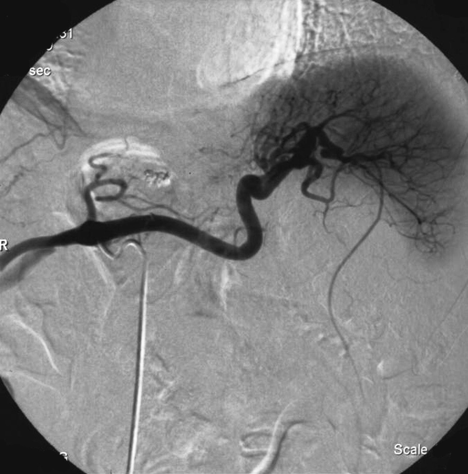 Katetrizační angiografický obraz neprokazující promývané pseudoaneuryzma v době jeho spontánní trombózy Fig. 3. Cathetrization angiography not detecting the contrast-filled pseudoaneurysm at the time of its spontaneuos thrombosis