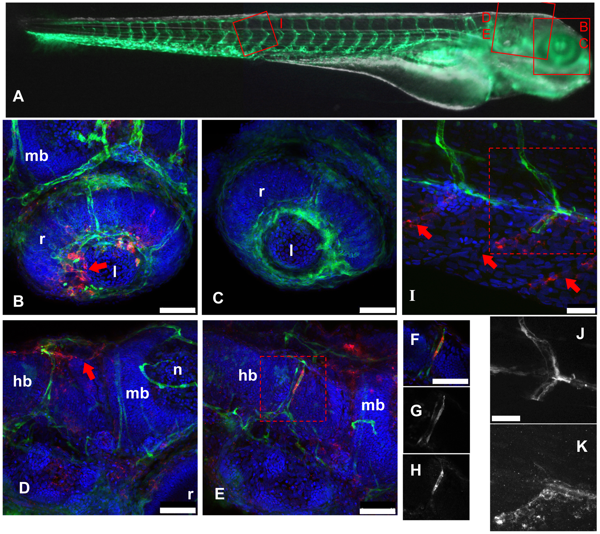 IHNV infects and disrupts blood vessels.
