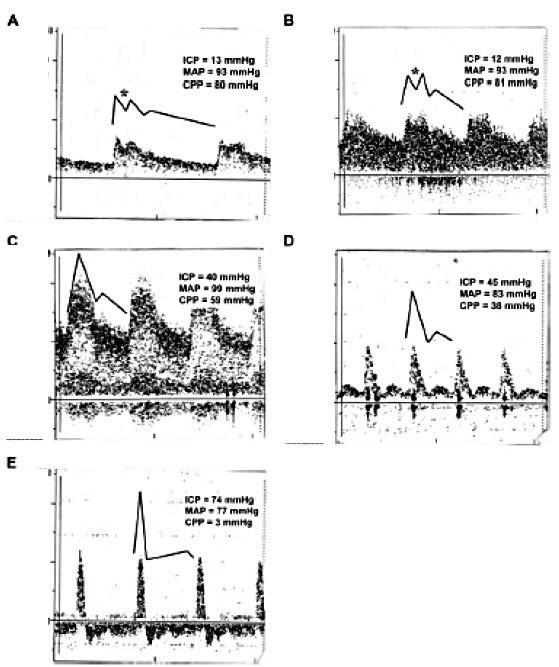 Grafické znázornění vývoje průtokového vzorce na křivce pulzního dopplera v průběhu nárůstu ICP (obrázek A-E)