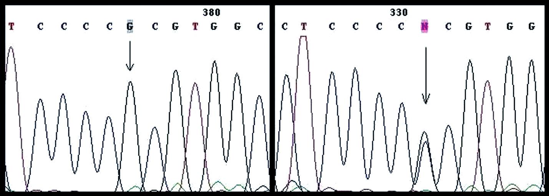 Polymorfizmus CCC/CGC Pro72Arg v exóne 4 (vľavo homozygotný typ, vpravo heterozygotný typ)