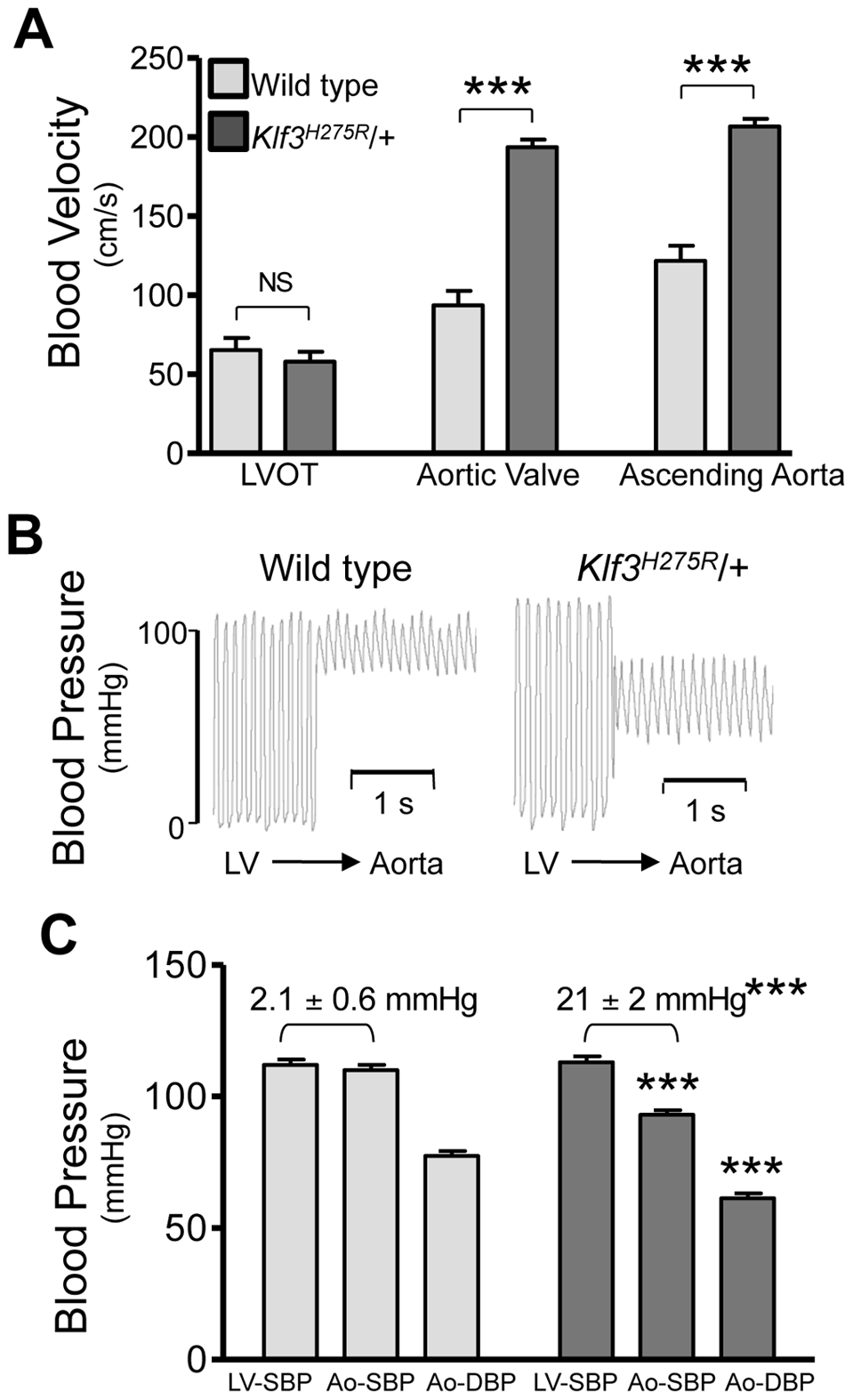 Hemodynamic evidence for aortic valvular stenosis in <i>Klf3<sup>H275R</sup></i>/+ mice.