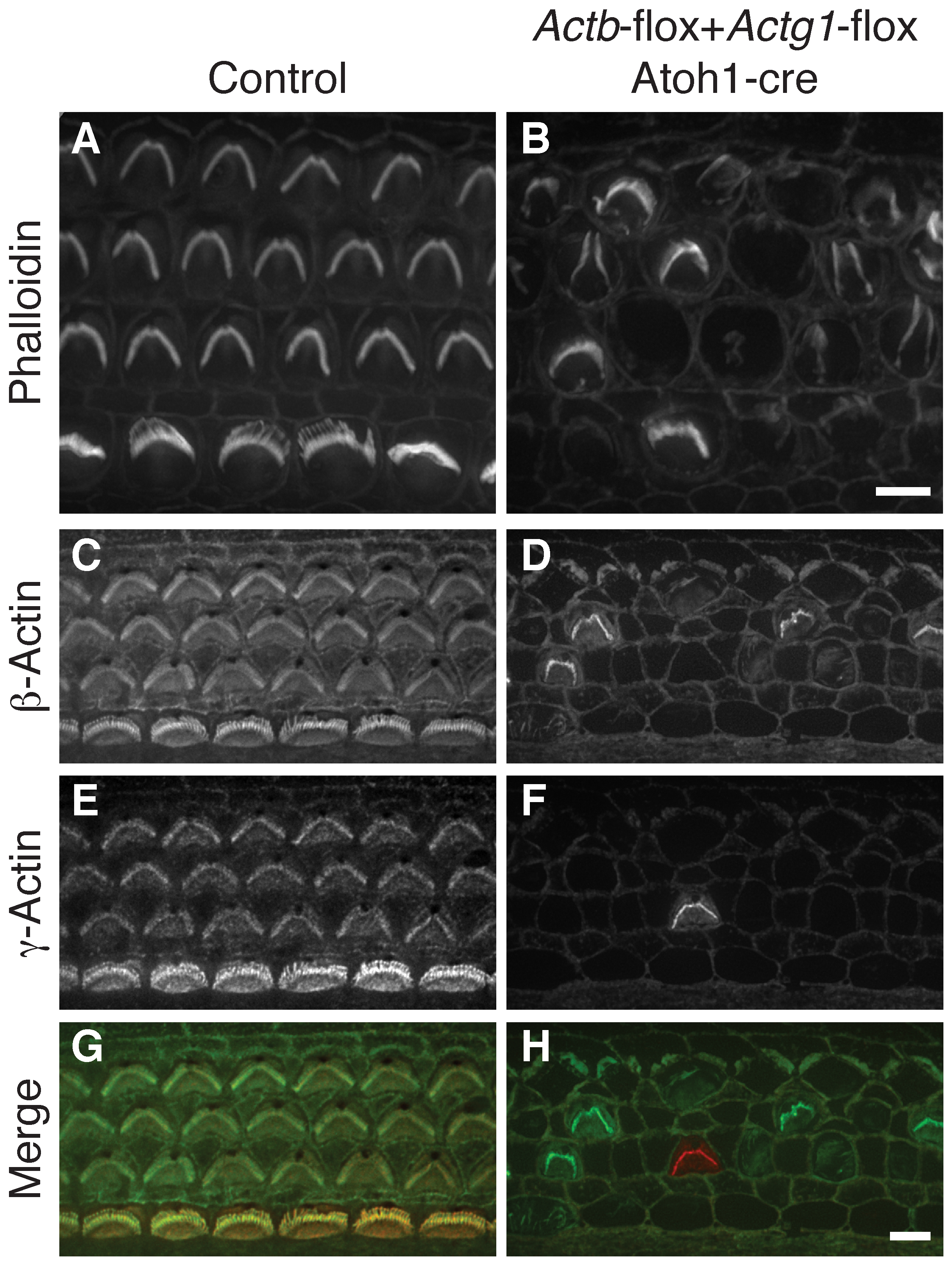 <i>Actb Actg1</i> double knockout cells do not develop stereocilia.
