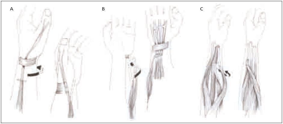 Schéma šlachového transferu. Obr. 2a. Šlacha svalu PT přenesena na šlachovou část svalu ECRB. Obr. 2b. Šlacha svalu FCU přenesena na šlachovou část svalu EDC. Obr. 2c. Šlacha svalu PL přenesena na šlachovou část svalu EPL. pronator teres (PT), extensor carpi radialis brevis (ECRB), flexor carpi ulnaris (FCU), extensor digitorum communis (EDC), palmaris longus (PL), extensor pollicis longus (EPL)