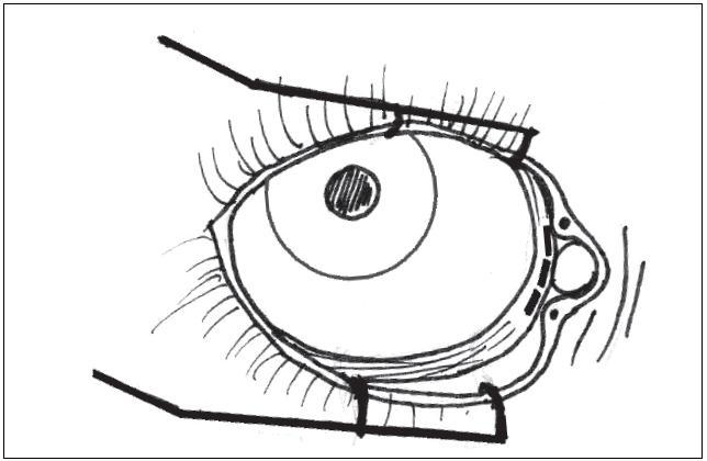 Transkarunkulární mediální orbitotomie – místo incize.