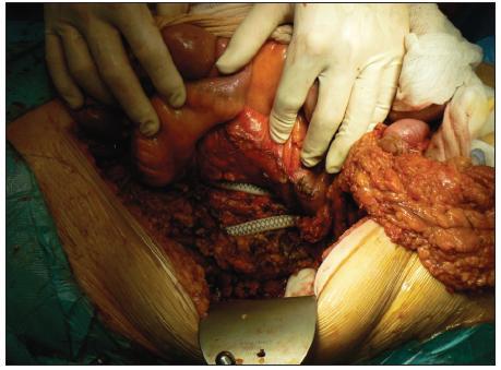 Odhalená cievna protéza po ľavostrannej hemikolektómii Fig. 3. Visible vascular prosthesis after left hemicolectomy