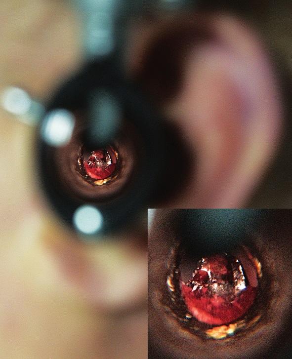 Otoskopické vyšetření s nálezem prosvítající krve ve středoušní dutině.