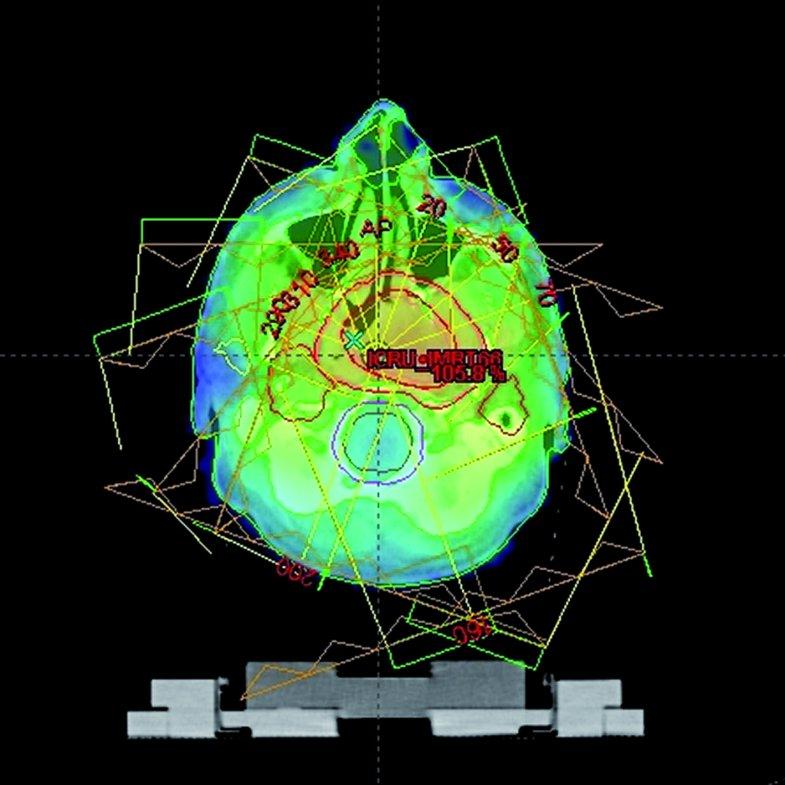 Výsledný izodozový plán techniky IMRT ve stejném řezu.