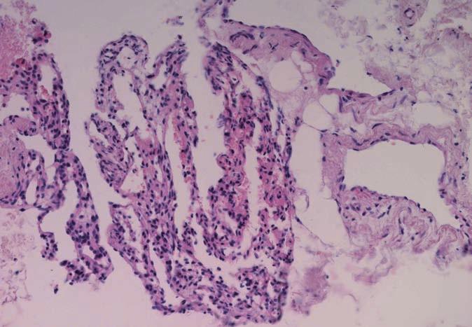 Mikrofotografie smíšeného (kapilárně kavernózního) typu hemangiomu.
