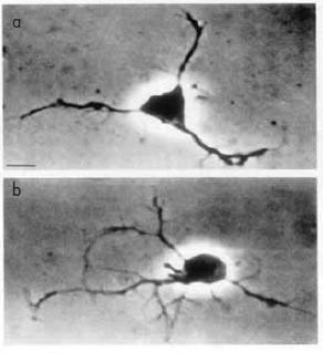 růst neuritů; a – v nepřítomnosti estrogenu; b – v přítomnosti estrogenu.