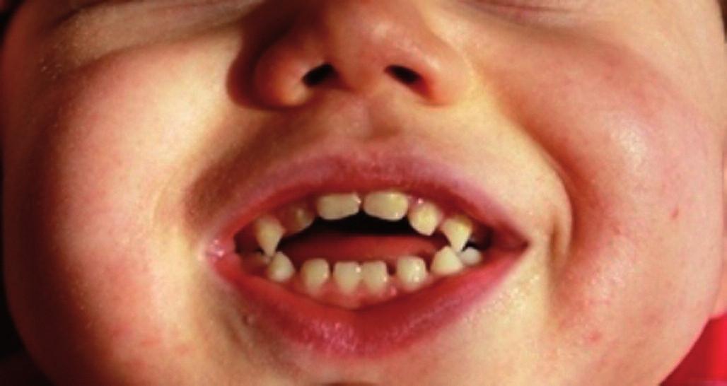 Otvorený zhryz u 2-ročného dieťaťa s detskou mozgovou obrnou. Dieťa nedokáže efektívne hrýzť ani žuť, prijíma len mixovanú stravu. Fig. 1. An open occlusion in a 2–year old child with cerebral palsy. The child is unable to bite and chew effectively and is consuming only liquid and pureed foods.