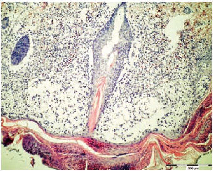 Infiltrát lokalizovaný v pars papilaris dermis se superficiální parakeratotickou krustou. HE, zvětšeno 100krát.