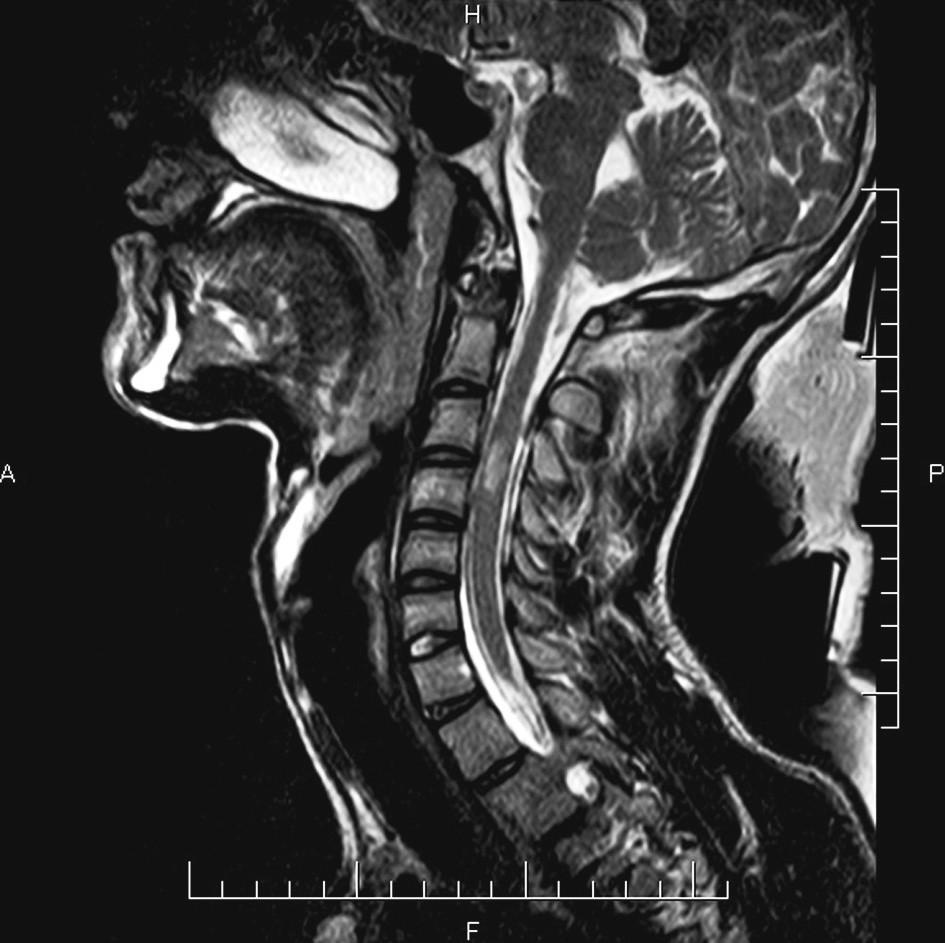 Na magnetické rezonanci je patrná hematomyclie v oblasti 3. - 4. krčního obratle