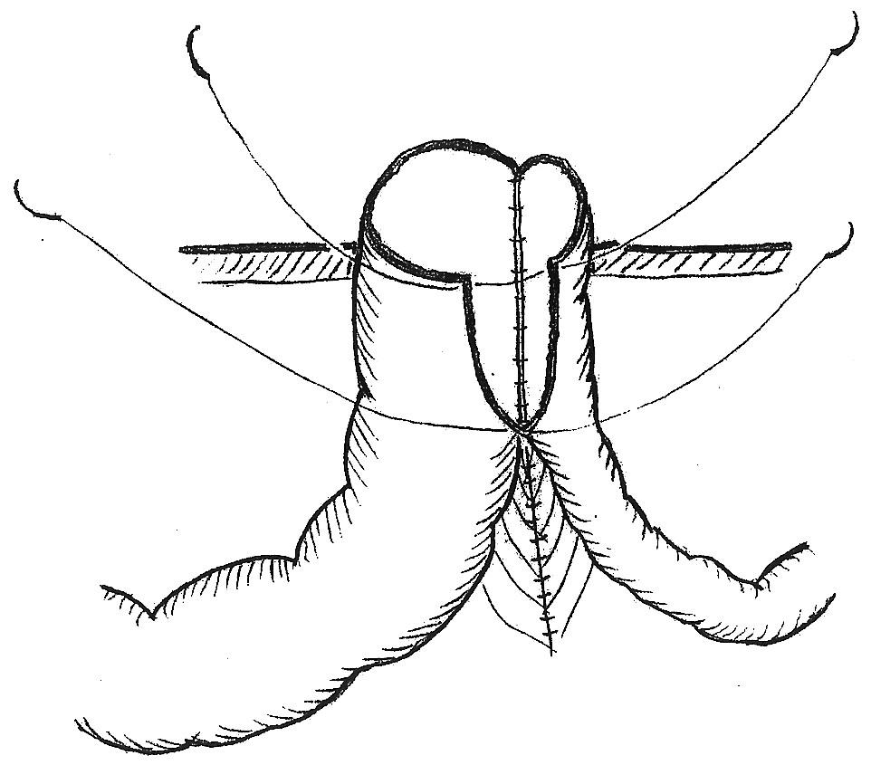 Modifikácia Grossovej metodiky, pri ktorej je stomovaná side to side anastomóza širokého orálneho a úzkeho aborálneho črevného segmentu Fig. 3. A modification of the Gross method, where the side to side anastomosis of the wide oral and narrow aboral intestinal segments is undone