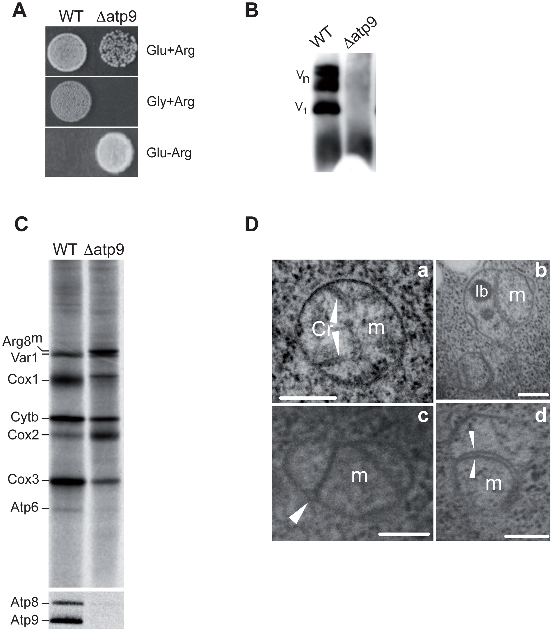 Deletion of the yeast mitochondrial <i>ATP9</i> gene and resulting phenotypes.